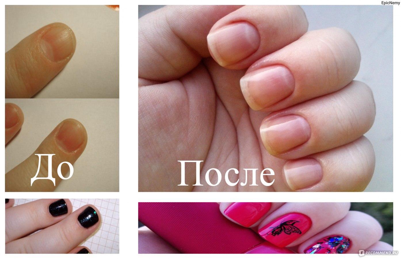 Как исправить форму ногтям в домашних условиях