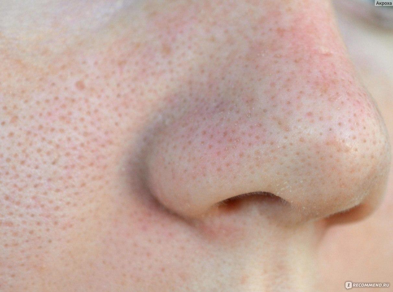 Чёрные точки на носу в домашних условиях фото