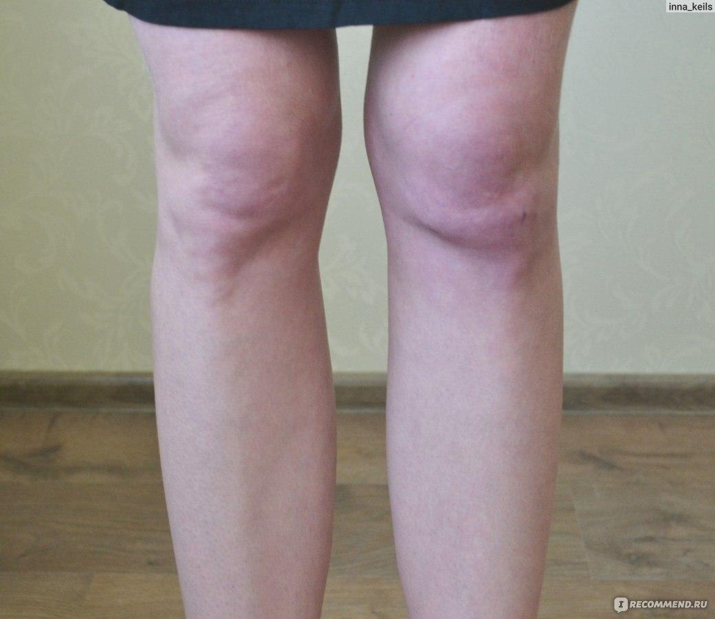 профилактика болезни суставов у лабрадоров
