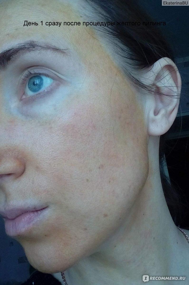 Коралловый пилинг: отзывы тех, кто делал эту процедуру, и советы по уходу за кожей лица