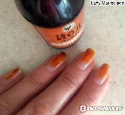 Чем укреплять ногти в домашних условиях йодом 819