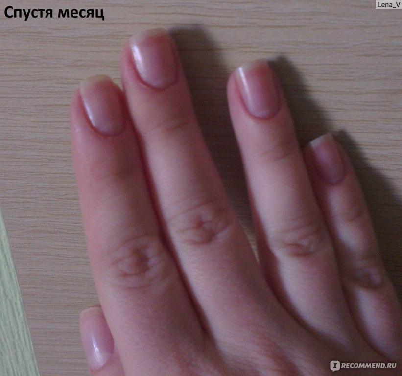 Как быстро отрастить ногти под гель лаком