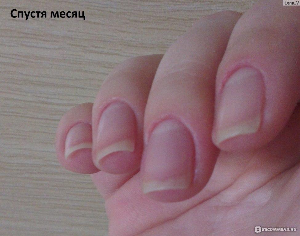 Как сделать чтобы быстро росли ногти за неделю 83