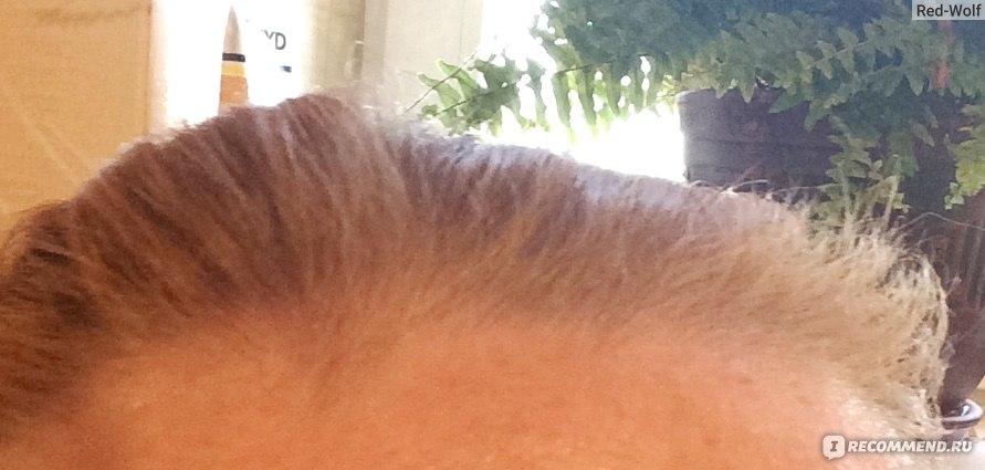 Лезут волосы лечение
