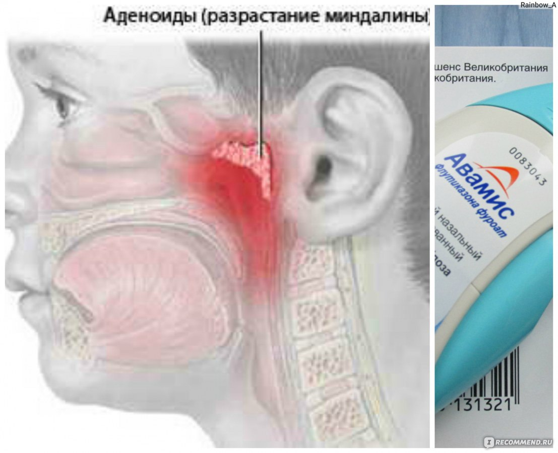 назонекс отзывы при аллергии