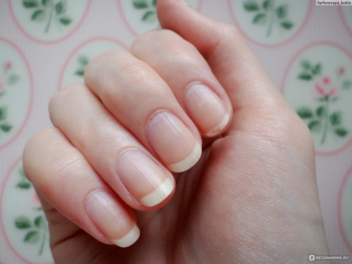 Чтобы ногти не ломались и не слоились: рецепты - Единственная 57