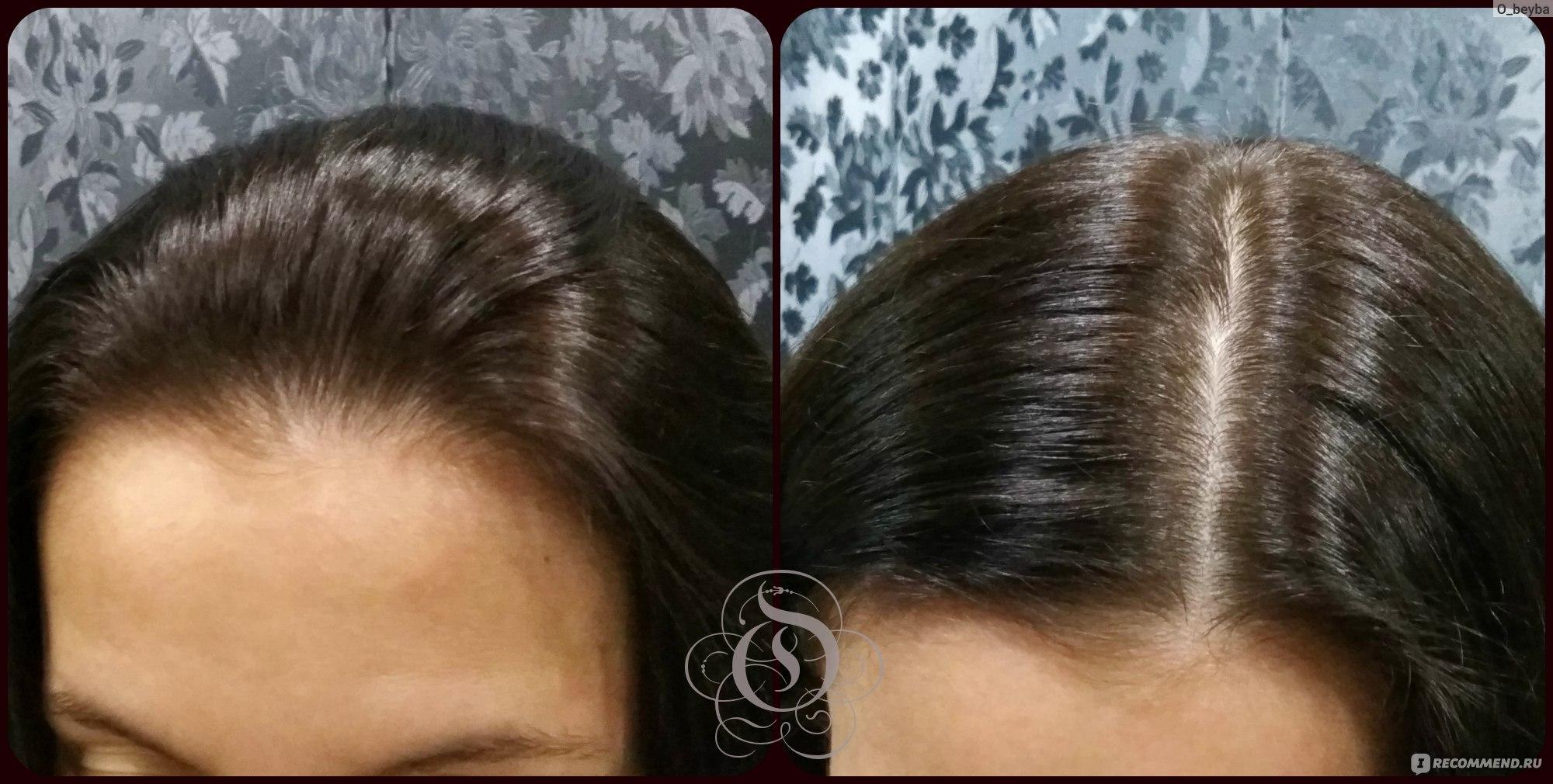 Как красить волосы краской в домашних условиях фото пошагово