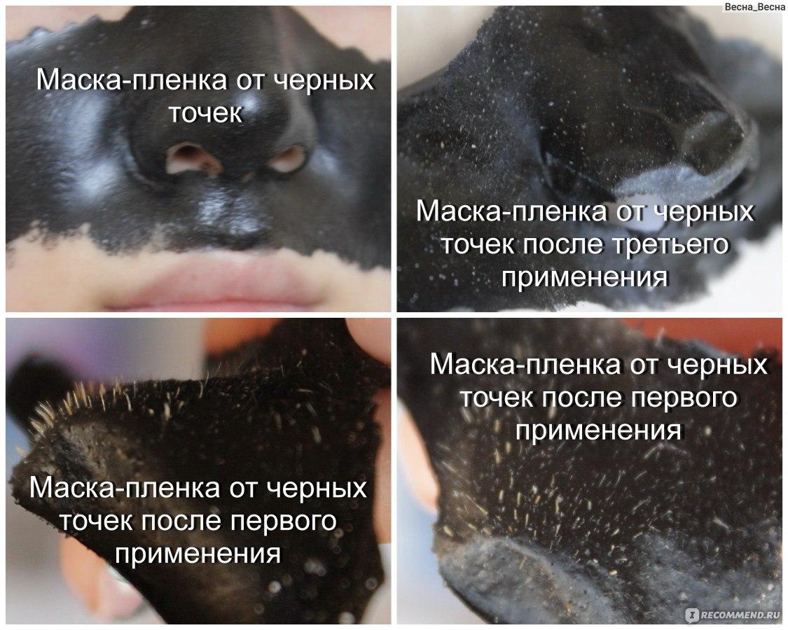 Маска от черных точек пленка в домашних условиях