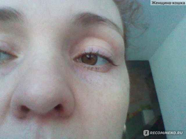 Мешки под глазами у беременных 54