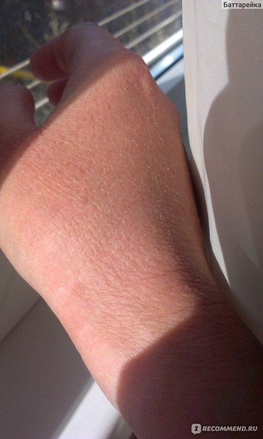Череда при атопическом дерматите отзывы