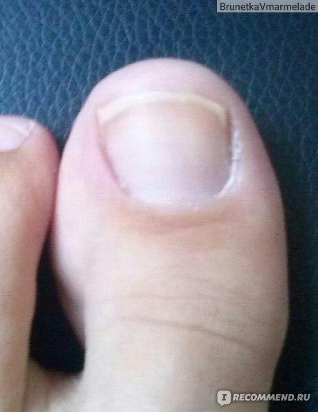 Виды грибков между пальцами ног