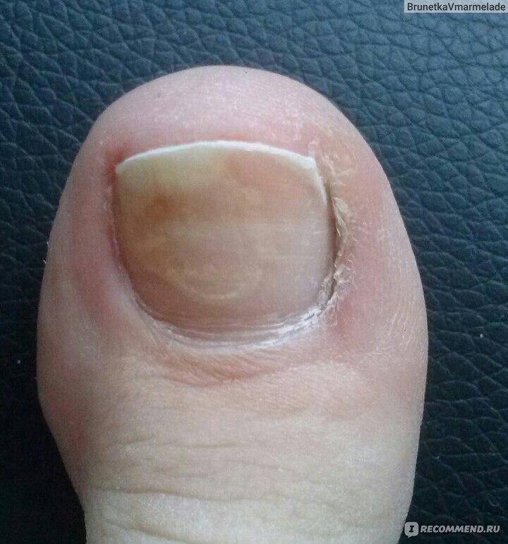 Грибок ногтей под ногтем образуется белая жидкость