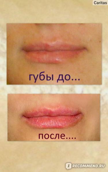 Увеличение губ краснодар отзывы
