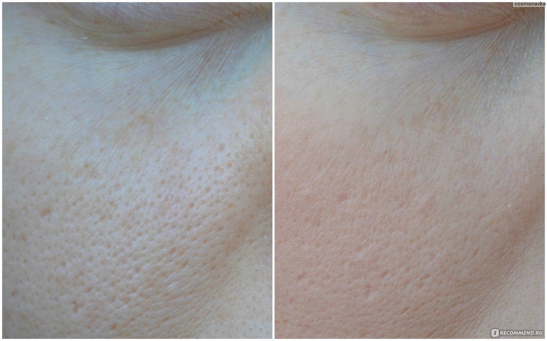 База под макияж при шрамах