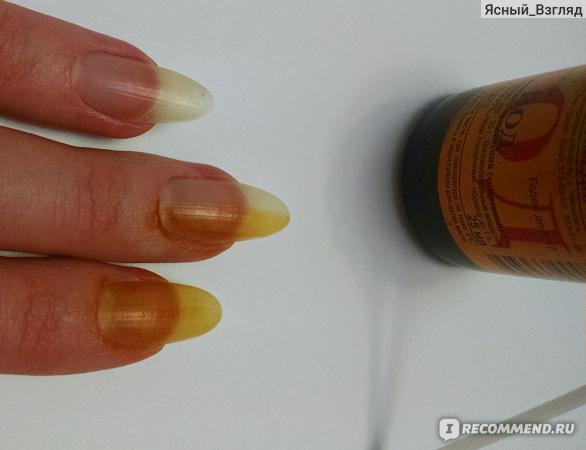 Чем укреплять ногти в домашних условиях йодом 988