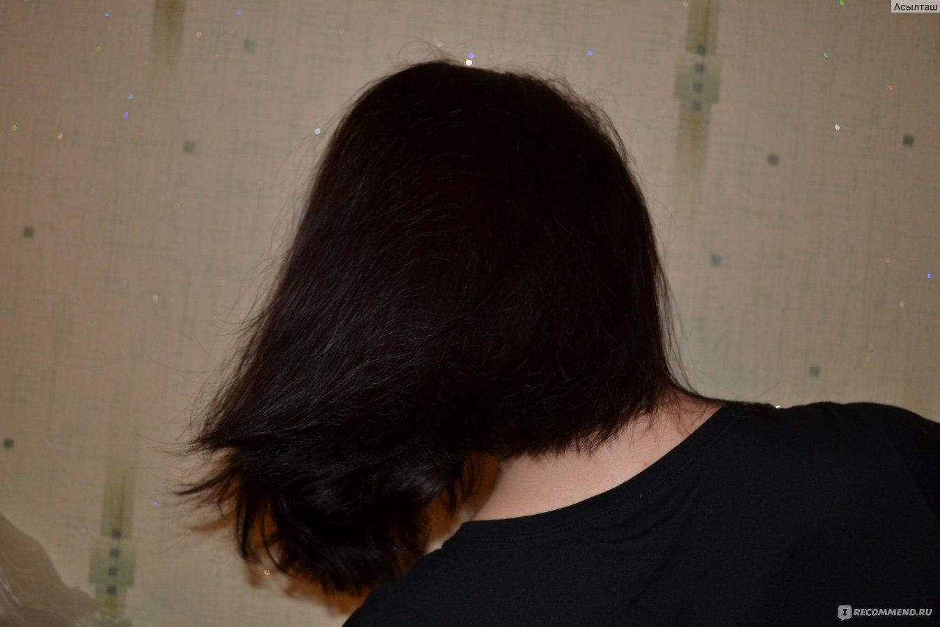 Высокая линия роста волос у мужчин подробности наличие