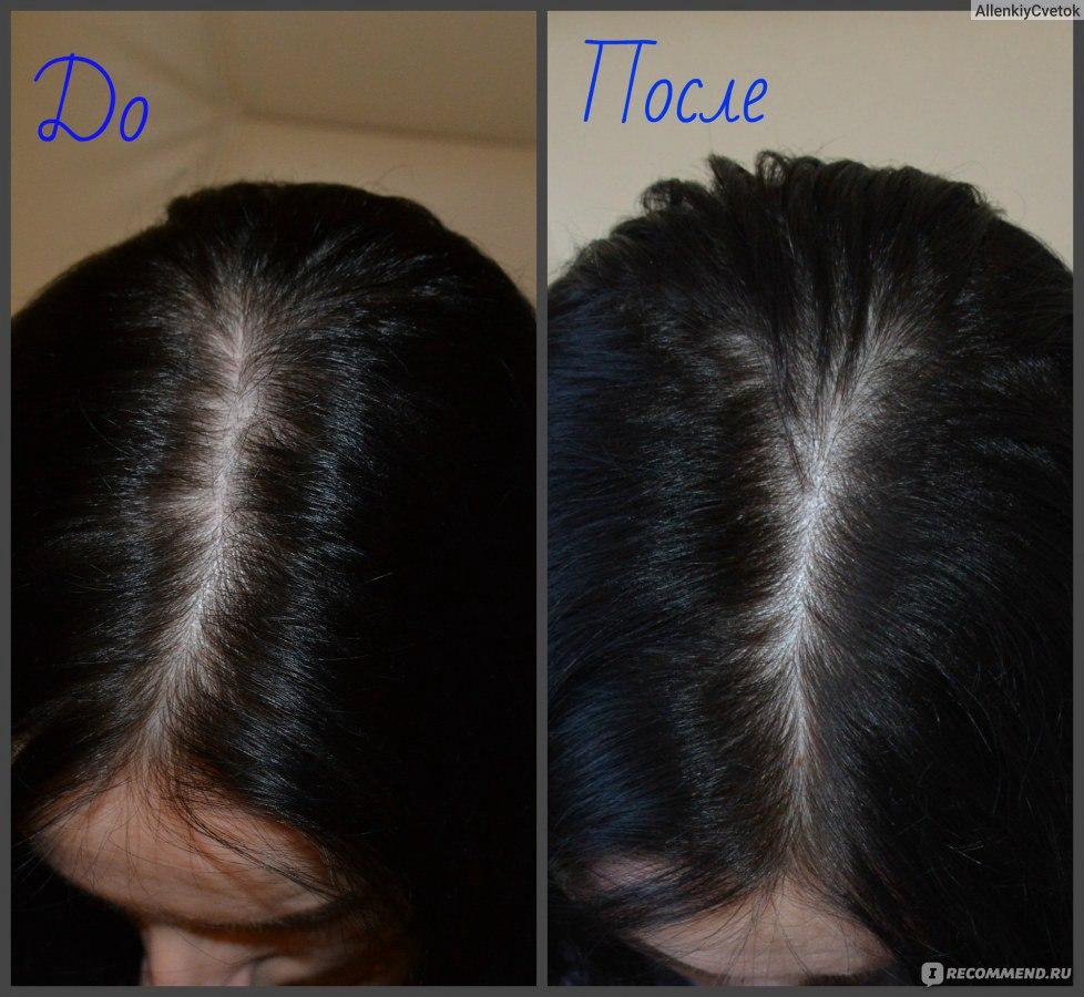 витамины для волос для инъекций