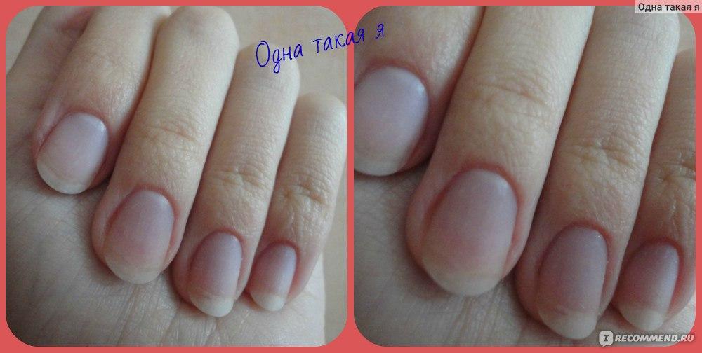 Ногти после наращивания стали мягкими
