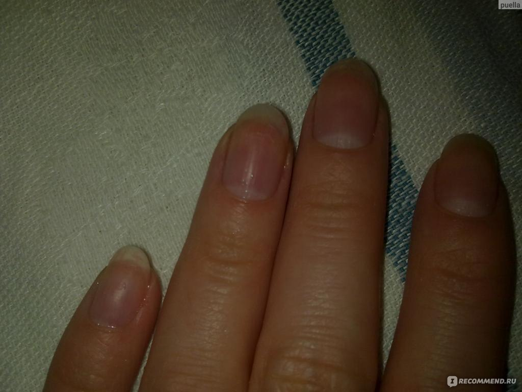 Почему пожелтели ногти после шеллака