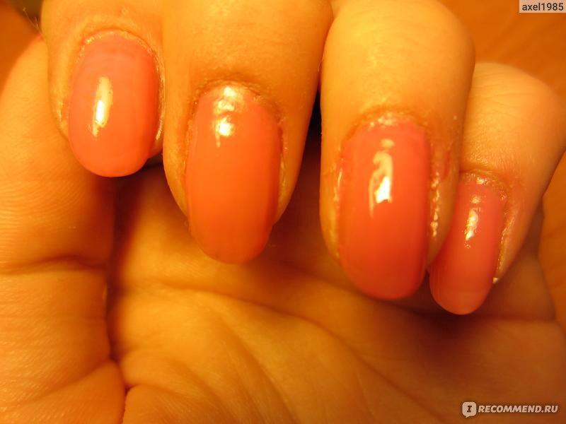 Ногти с дефектами