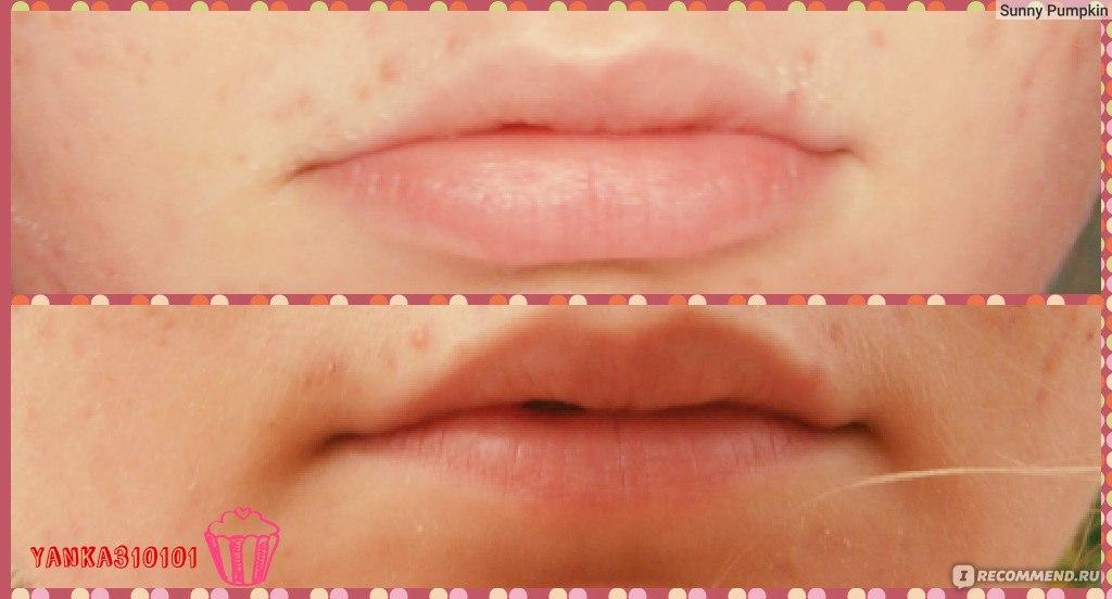 Как увеличить губы в домашних условиях рекомендации