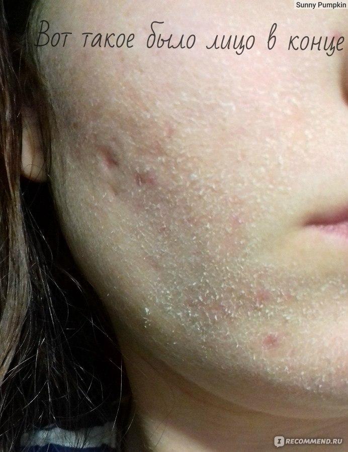 Жирная кожа требует специального длительного ухода, соответствующего лечения и соблюдения определенного режима питания.