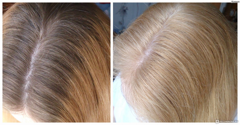 Аллергия на краску для волос что делать фото