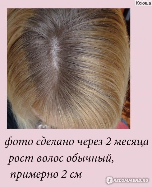 димексид для роста волос отзывы фото вот одна наших