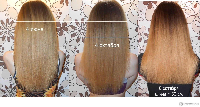 Как сделать чтобы вырастить волосы 154