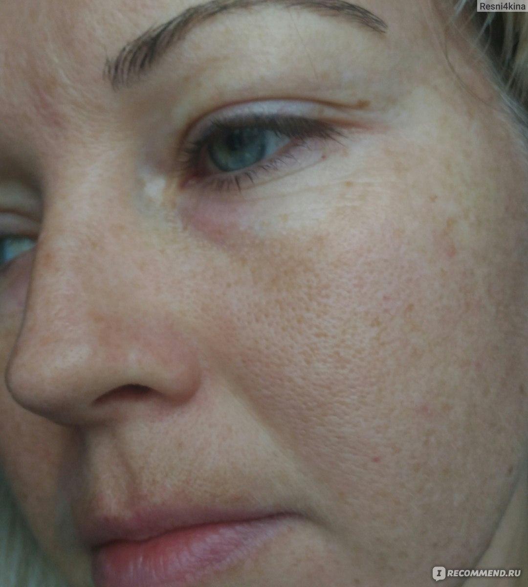Поверхностный химический пилинг лица – разбираемся в разновидностях
