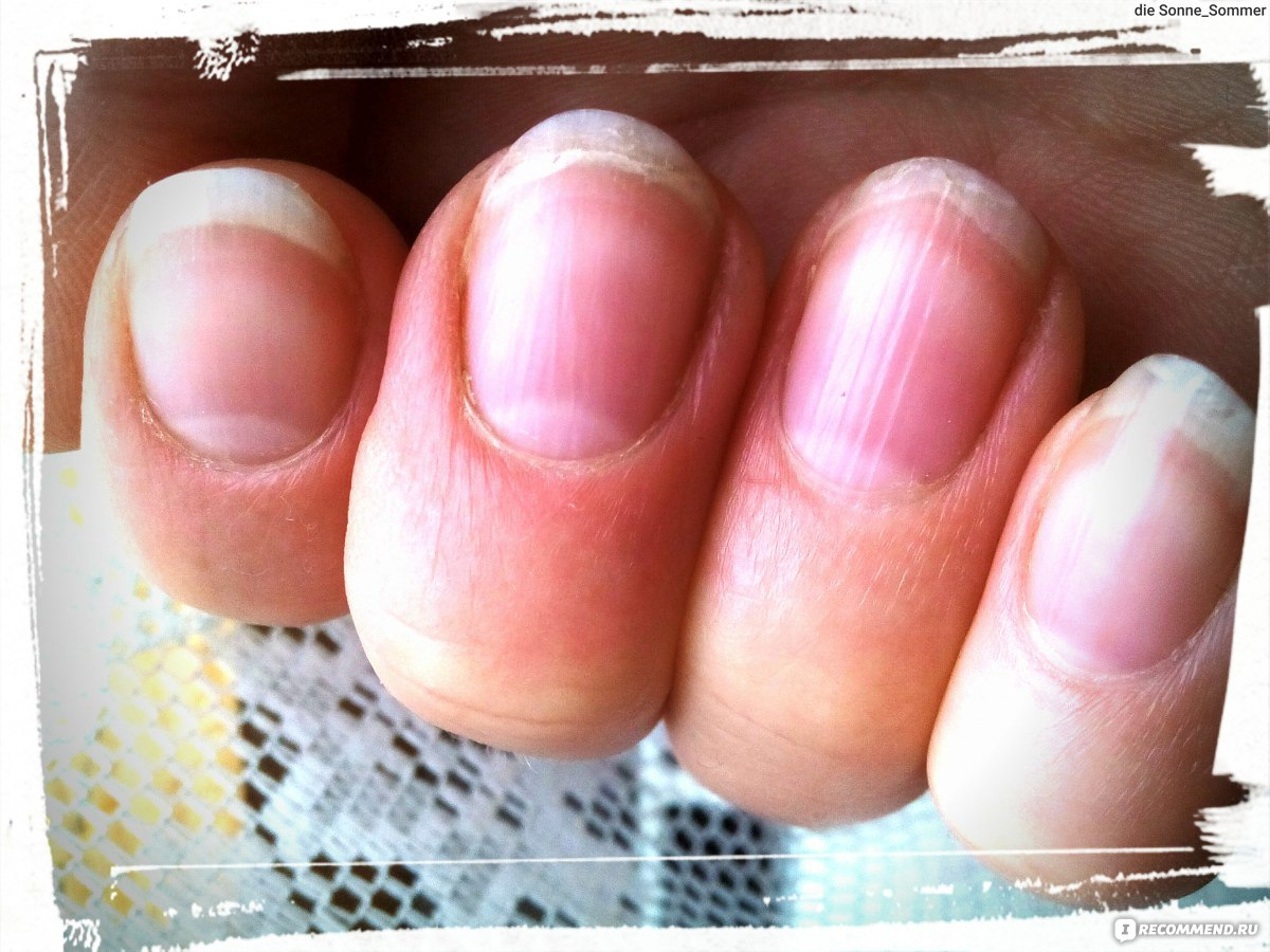 грибок на ногтях ног лечение последствия фото