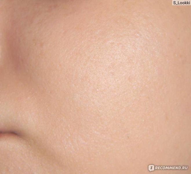 лучший тональный крем для шелушащейся кожи