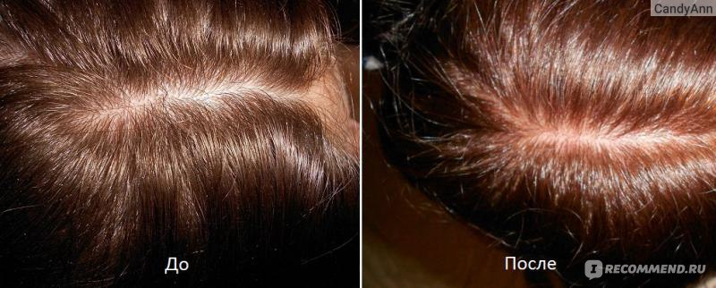 Почему после бальзама выпадают волосы