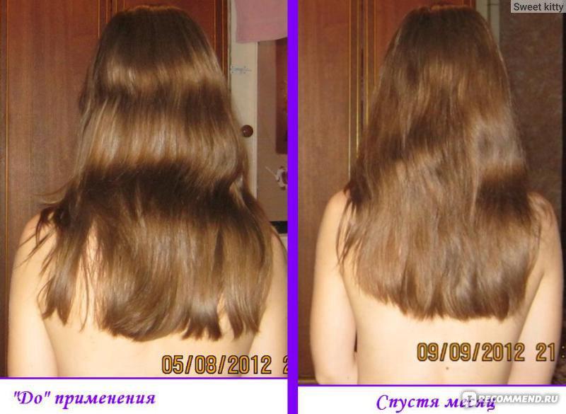 Nioxin сыворотка от выпадения волос