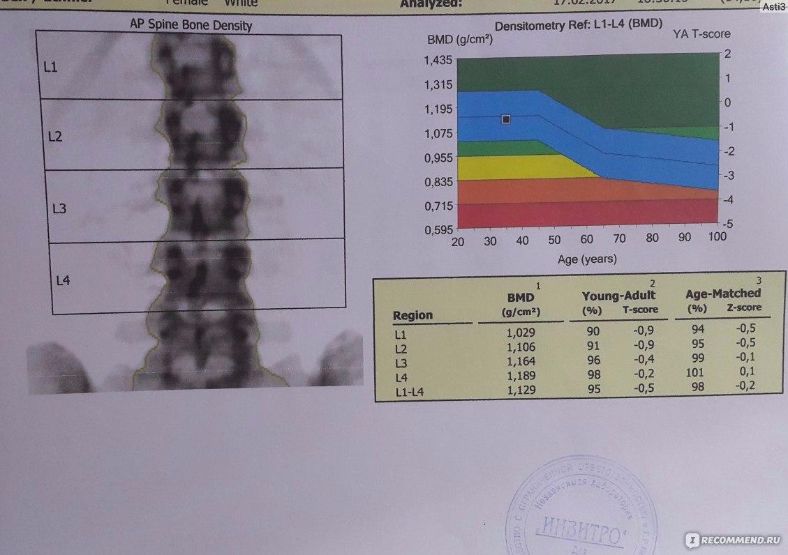 И анализ кальций крови денситометрия на на ушах если шелушится кожа