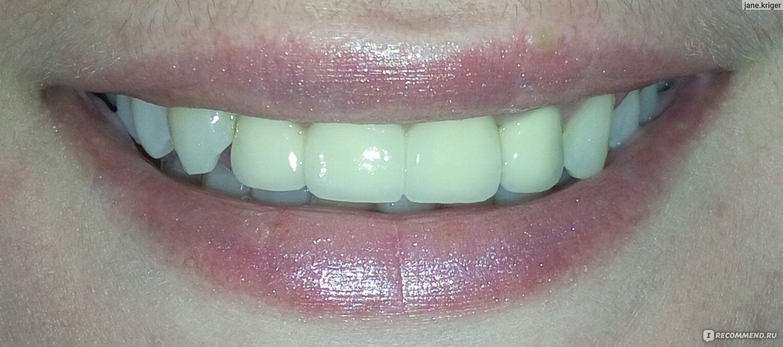 вставные виниры на все зубы
