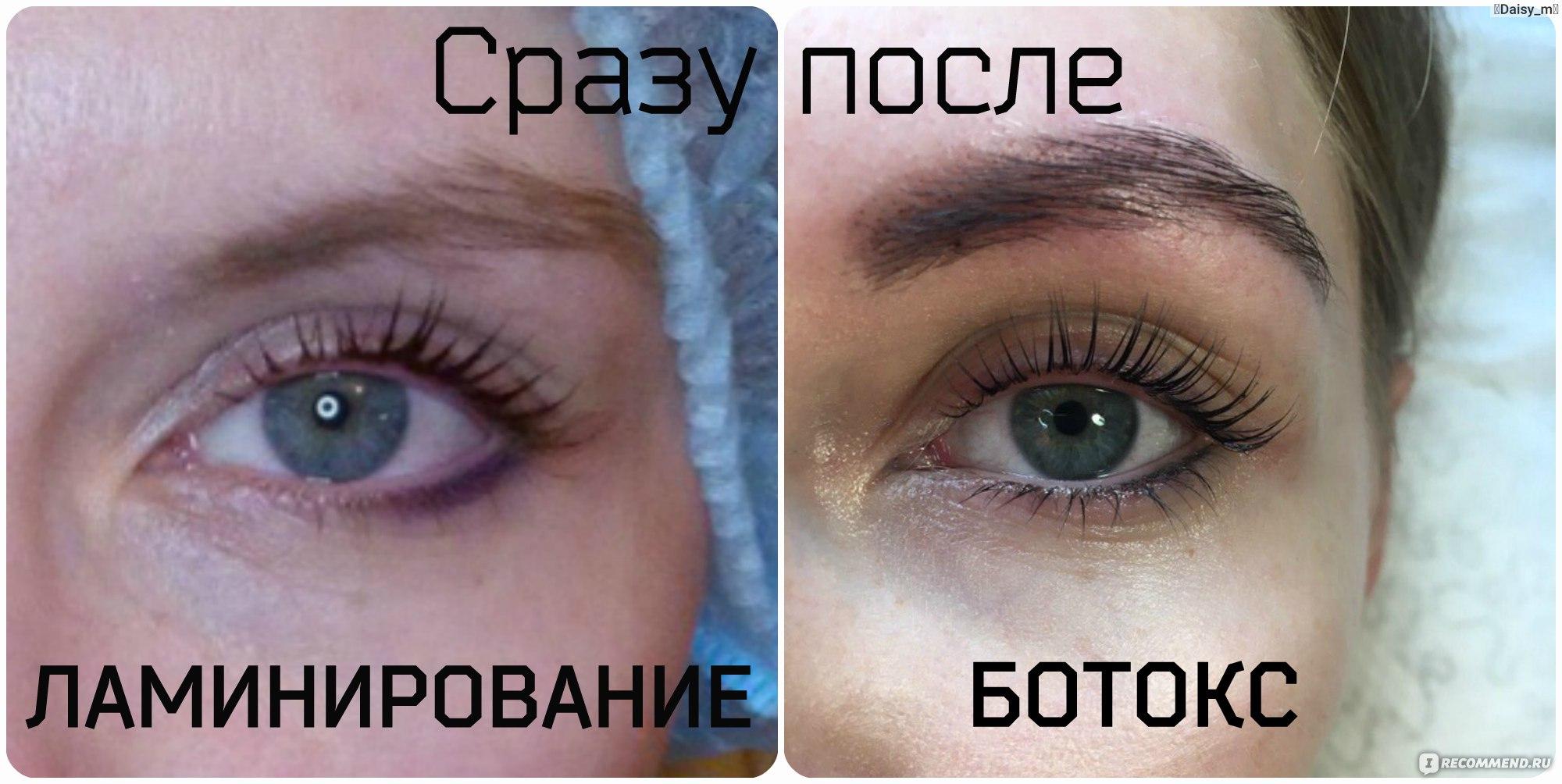 Ботокс ресницы фото до и после