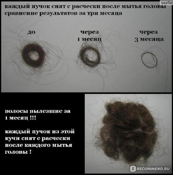 Волосы керамиды лечение