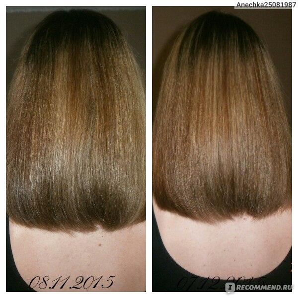 ампулы для роста волос сша