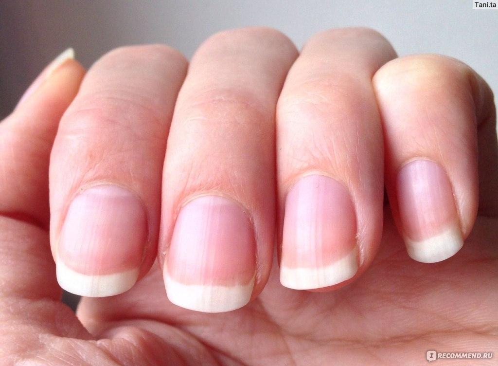 Как укрепить ногти и их рост в