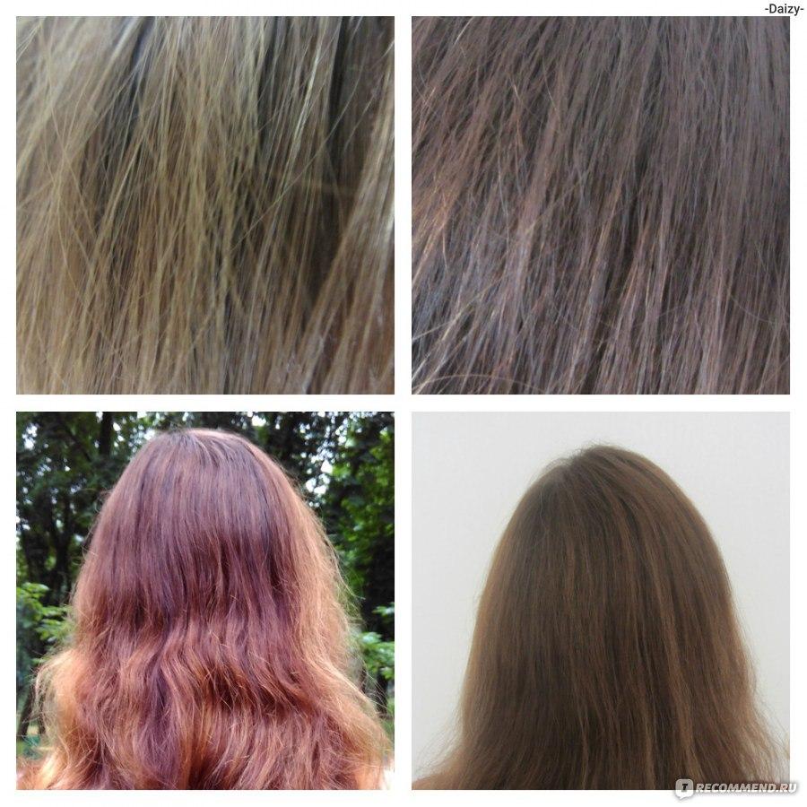 как удалить волосы