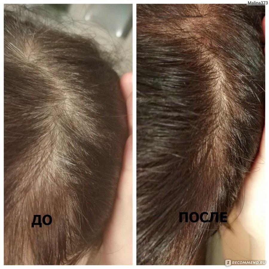 Седые волосы в челке