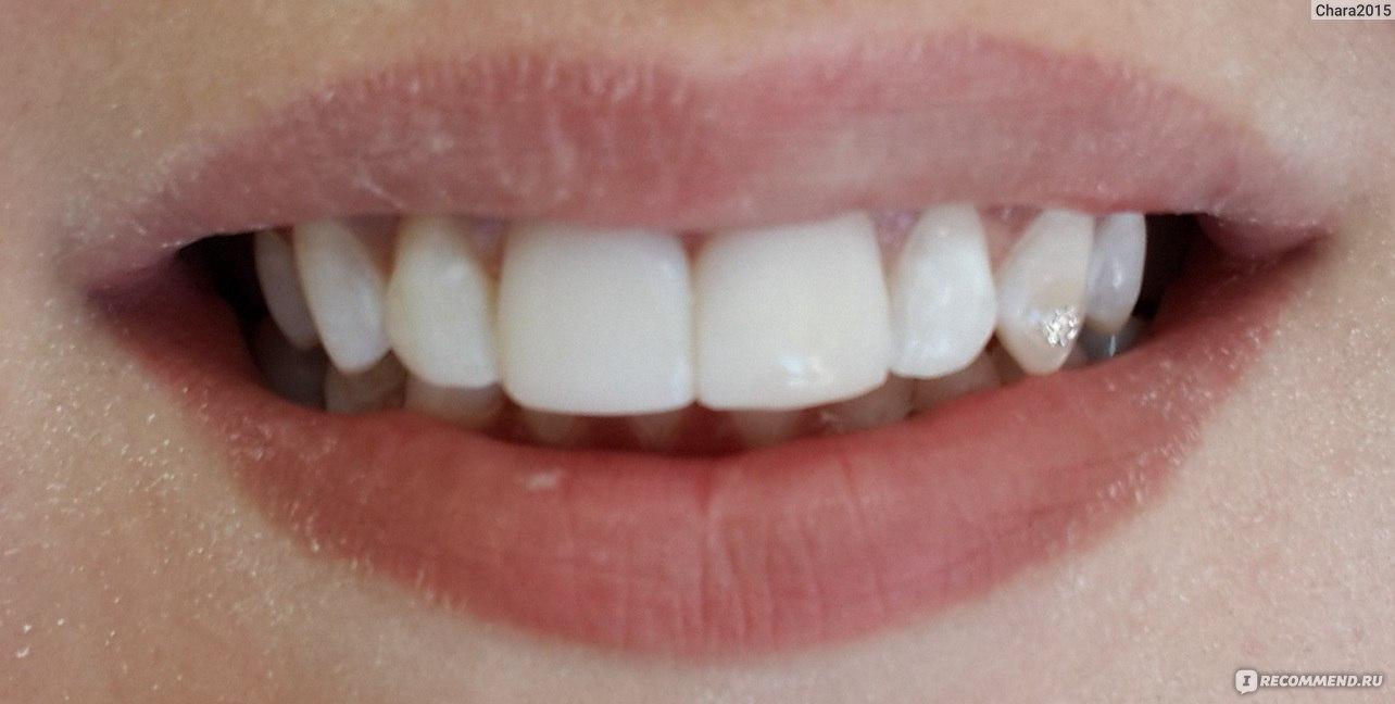 Сделать передний зуб как настоящий