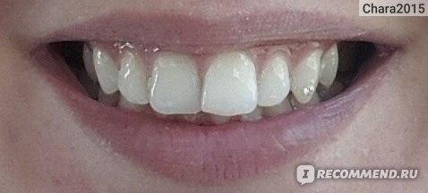 пластинки для отбеливания зубов