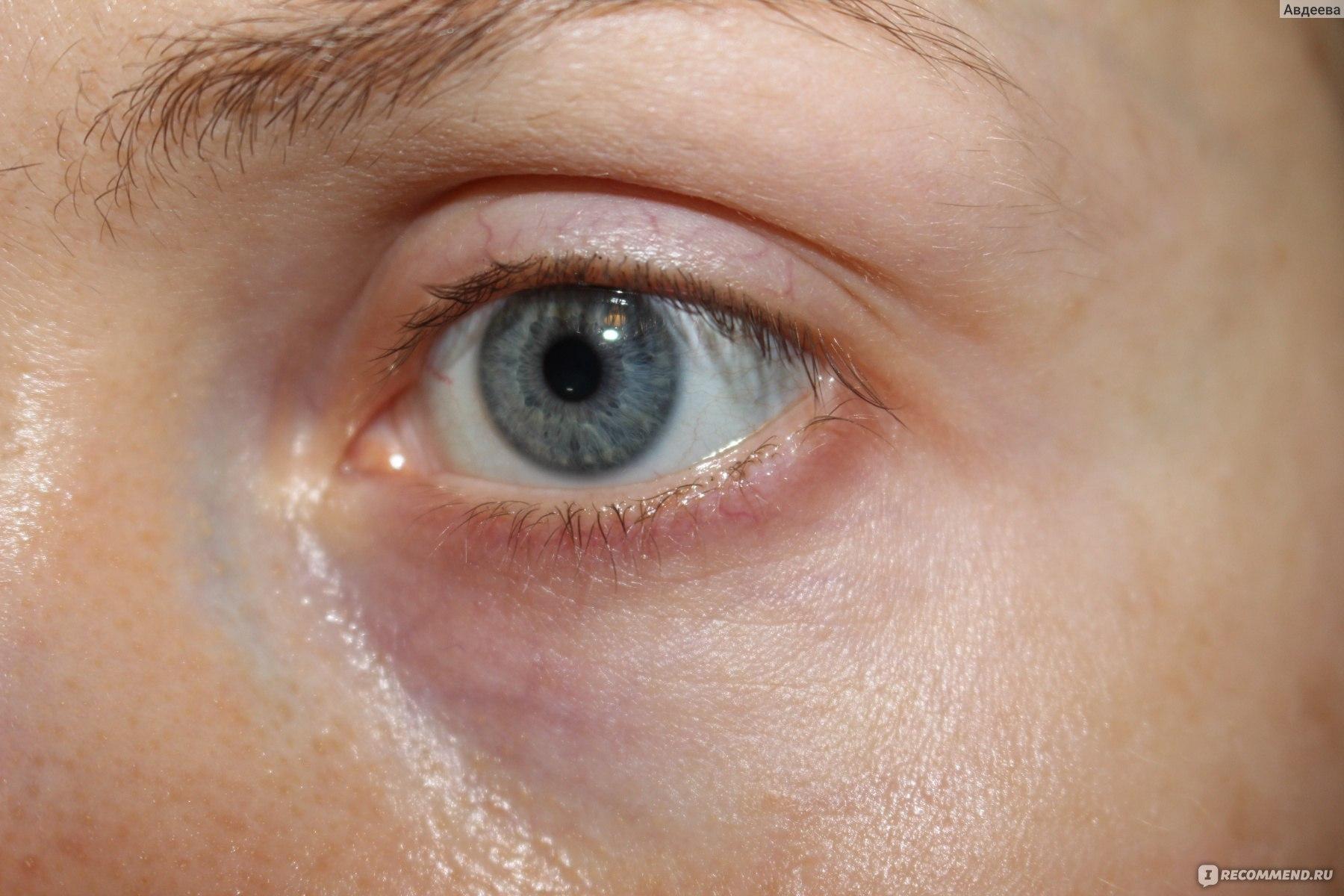 3e896c1ac7c7 Сыворотка для ухода за кожей вокруг глаз Lierac Supra Radiance Sérum ...