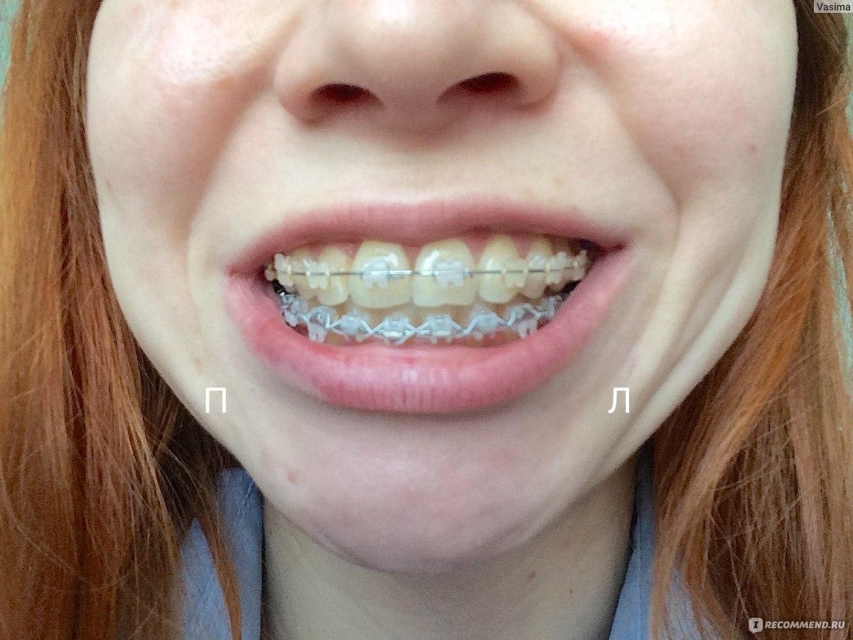Как сделать зубы красивыми, сколько стоят красивые 27
