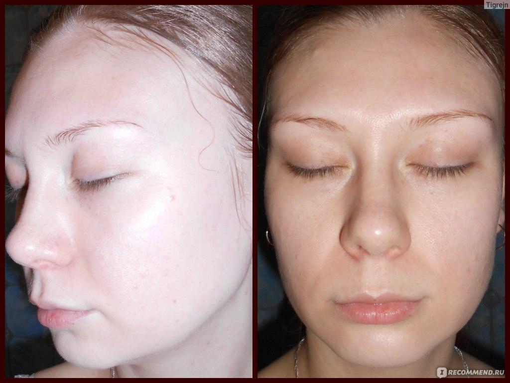 Как сделать свою кожу чистой