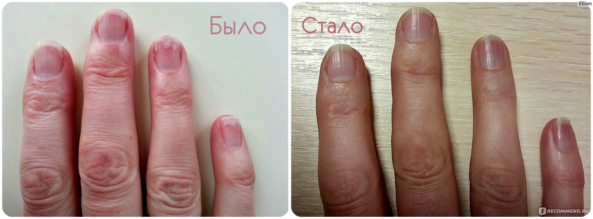 Флуконазол ребенку 7 при грибке ногтей