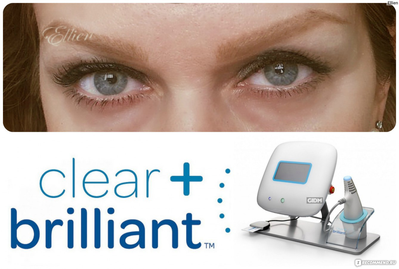 Лазерное омоложение лица — Clear and Brilliant / Цены и ...