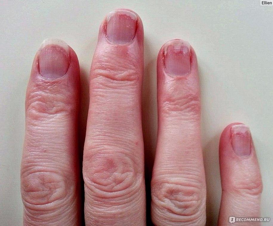 Лечение грибка ногтей: 14 врачей Москвы и 38 отзывов пациентов